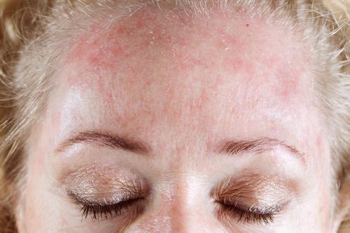 droge huid verbeteren