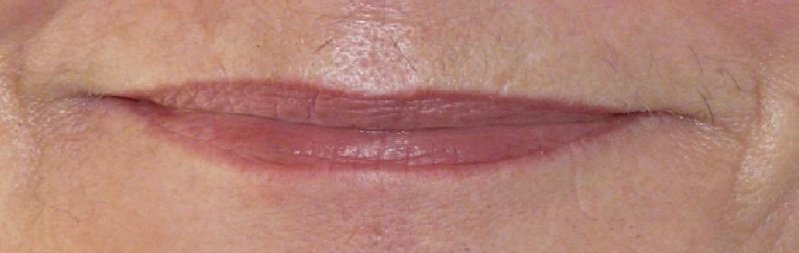 lipss-los