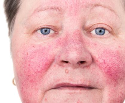 gevoelige huid - rosacea