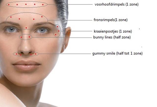Botox injectie plaatsen