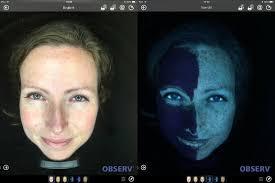 Observe 520 huidscan laat een SPF filter op de huid goed zien.