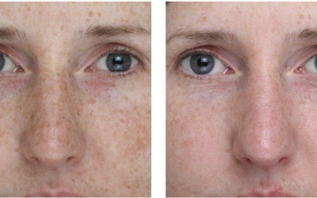 even skin tone treatment