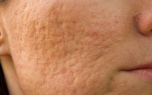 littekens na acne