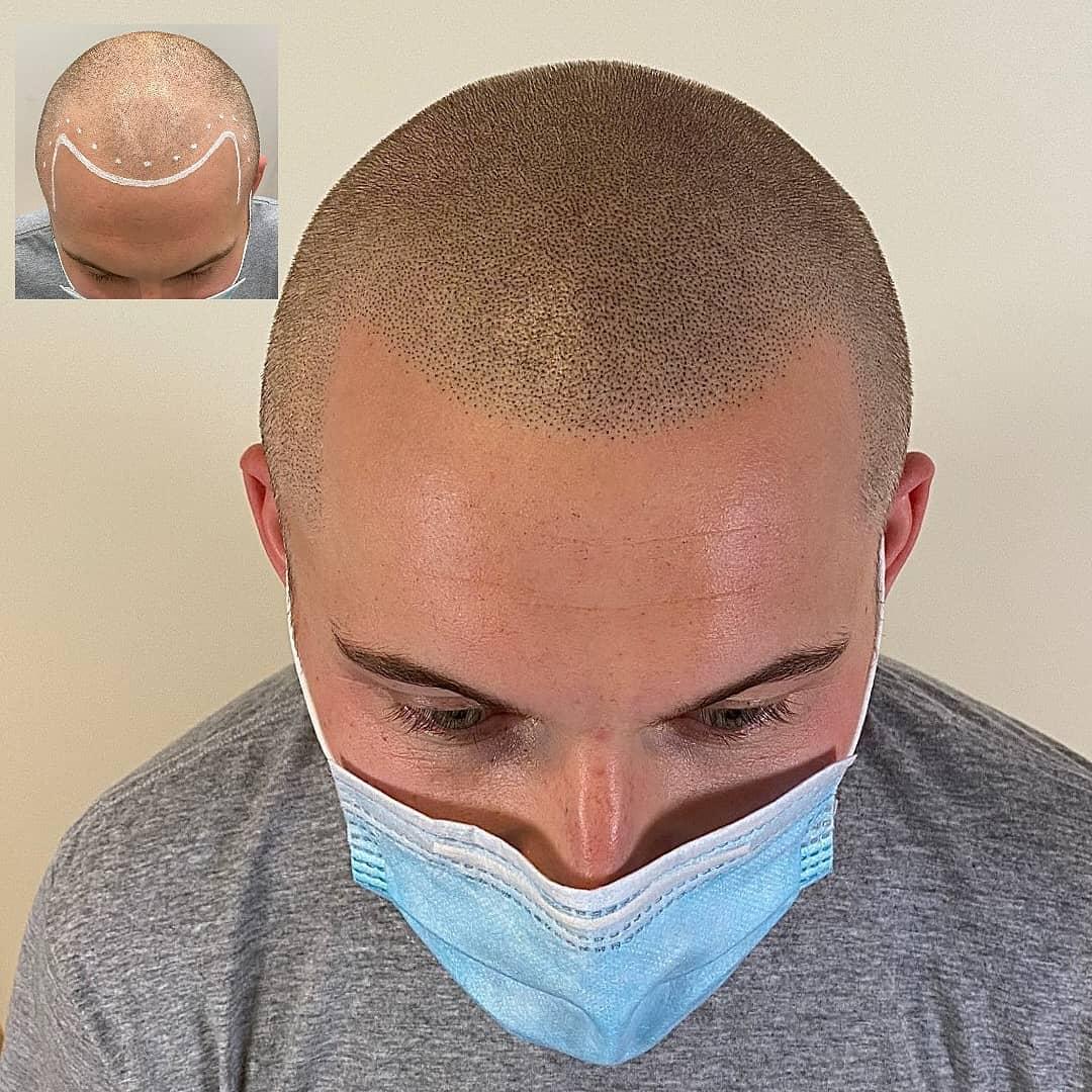 Scalp pigmentatie